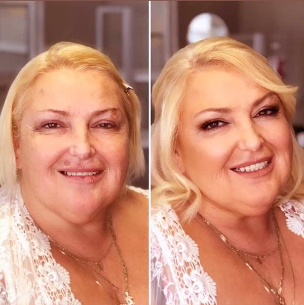 Image of Angela Deem plastic surgery